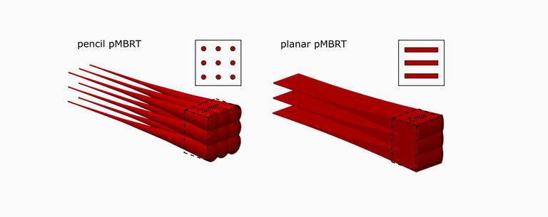 pMBRT_schematic2.png